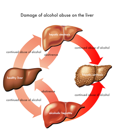 Diagram of alcohol related liver damage