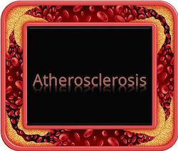 Abnormal Lipid Levels can Lead to Atherosclerosis