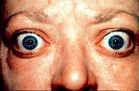 Bulging eye symptoms of Graves Disease