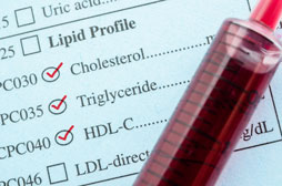 Cholesterol report and blood test