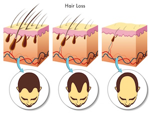Lower testosterone levels in the bloodstream can lead to hair loss