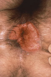 Perianal mucocutaneous lesion caused by Herpes Simplex