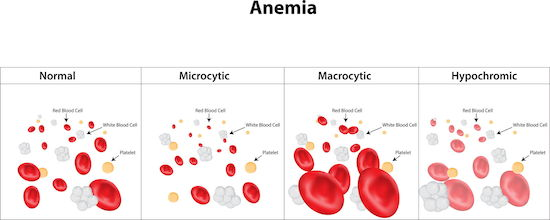 High MCH Levels can Indicate MacroCytic Anemia