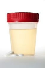 Pale Urine can be a Symptom of Kidney Disease