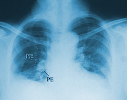Pulmonary Embolism (shown in X-ray) less likely for Type O