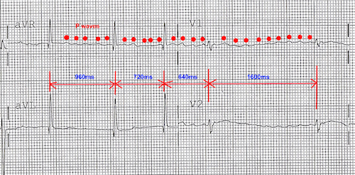 an ekg indicating afib
