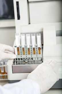 Urine samples waiting for drug testing